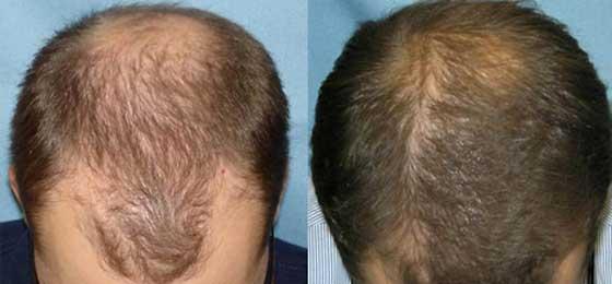 Haarwachstum Verschnellern